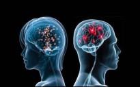 Vés a: Un estudi assegura que el cervell dels psicòpates no entén el càstig