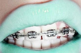 5 famosos que es van operar les dents! [L'ABANS I EL DESPRÉS]