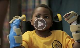 Zion Harvey, el primer nen del món que rep un trasplantament de mans