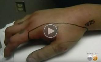 En risc de perdre una mà per fer-se un «selfie» amb una serp de cascavell