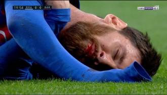 Vés a: VÍDEO El cop de colze de Marcelo que ha fet sagnar Messi (i que l'àrbitre no ha sancionat)