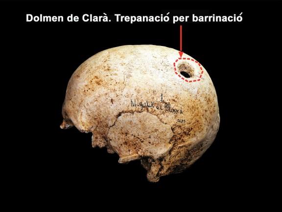 Els ossos ens parlen. Antropologia física a la prehistòria del Solsonès